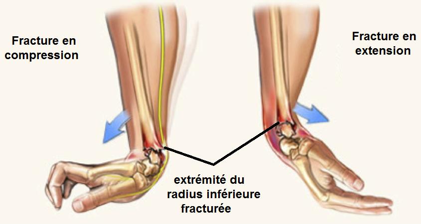fracture-pouteau-colles.png